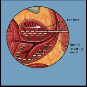 brachytherapy Prostate Cancer Treatment