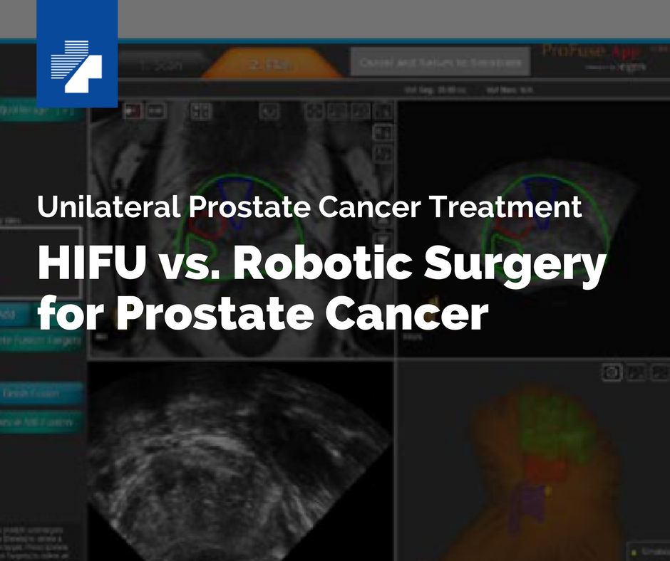 HIFU vs. Robotic Surgery for Prostate Cancer